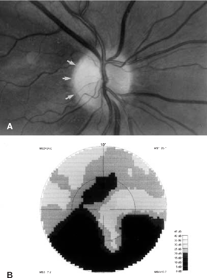 Fig. 2A,B Ocular findings four months after Wada test. A Fundus photography shows temporal paleness of optic disc (arrows). B Slightly decreased paracentral scotomas in computerized perimetry
