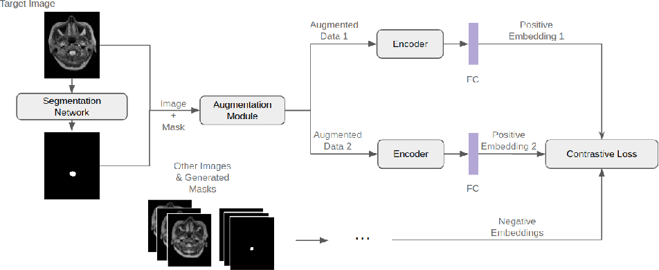 Figure 1 for Triplet Contrastive Learning for Brain Tumor Classification