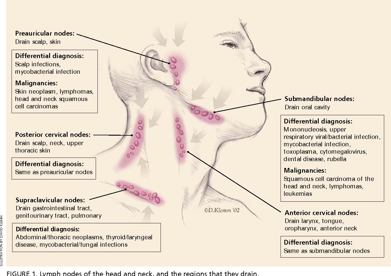 Swollen lymph node in infection - Stock Image - C029/4959