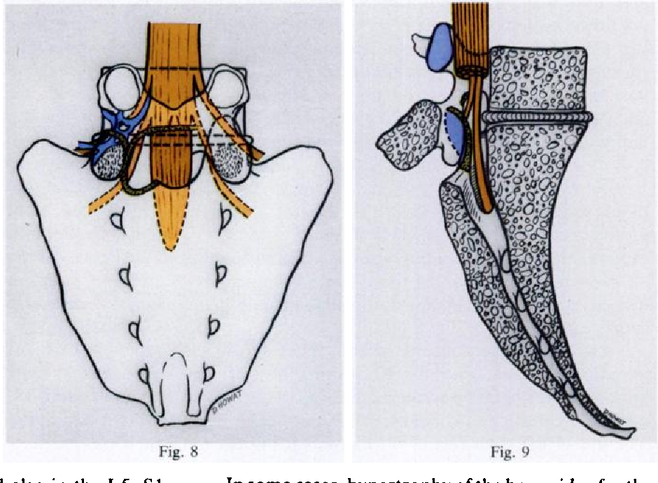 Normal and pathological anatomy of the lumbar spinal nerve root ...