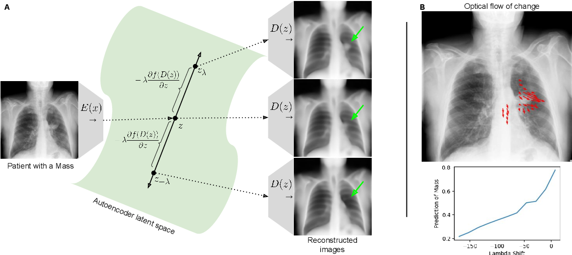 Figure 1 for Gifsplanation via Latent Shift: A Simple Autoencoder Approach to Progressive Exaggeration on Chest X-rays