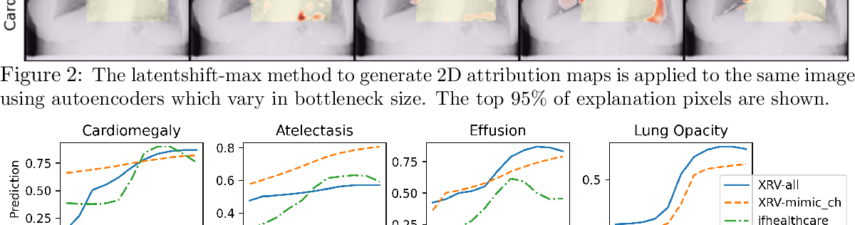 Figure 3 for Gifsplanation via Latent Shift: A Simple Autoencoder Approach to Progressive Exaggeration on Chest X-rays
