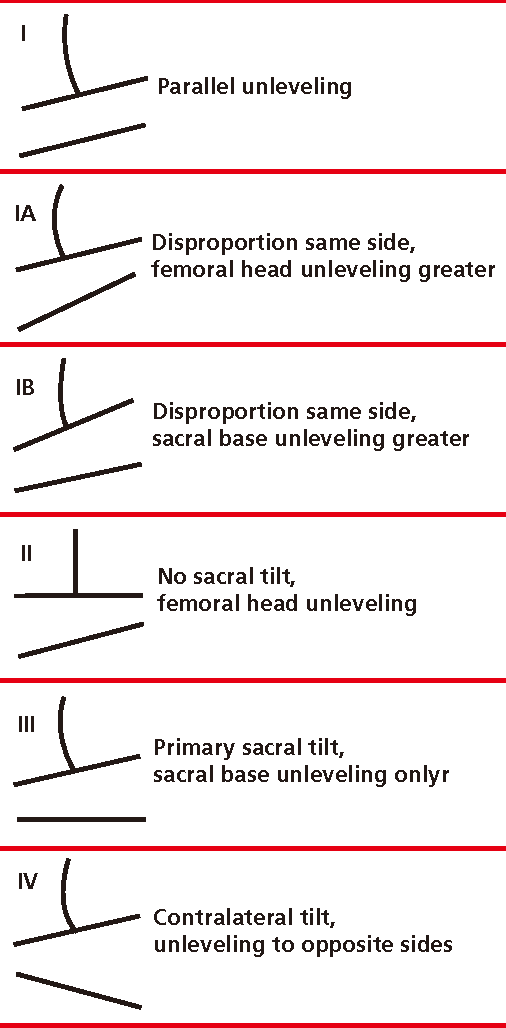 Figure 2 From Prevalence Of Frontal Plane Pelvic Postural Asymmetry