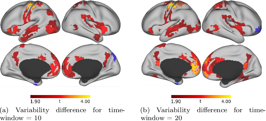 Figure 1 for Autism Classification Using Brain Functional Connectivity Dynamics and Machine Learning