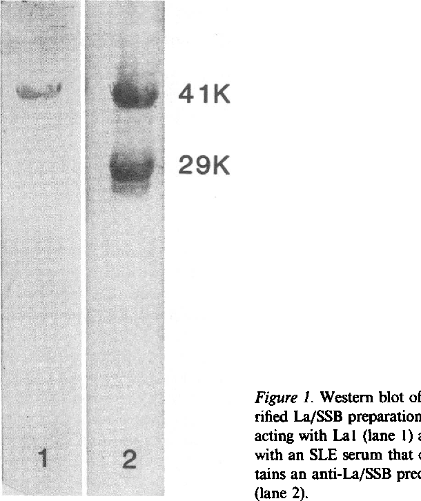 Figure 1. Western blot of a purified La/SSB preparation reacting with Lal (lane 1) and with an SLE serum that contains an anti-La/SSB precipitin (lane 2).
