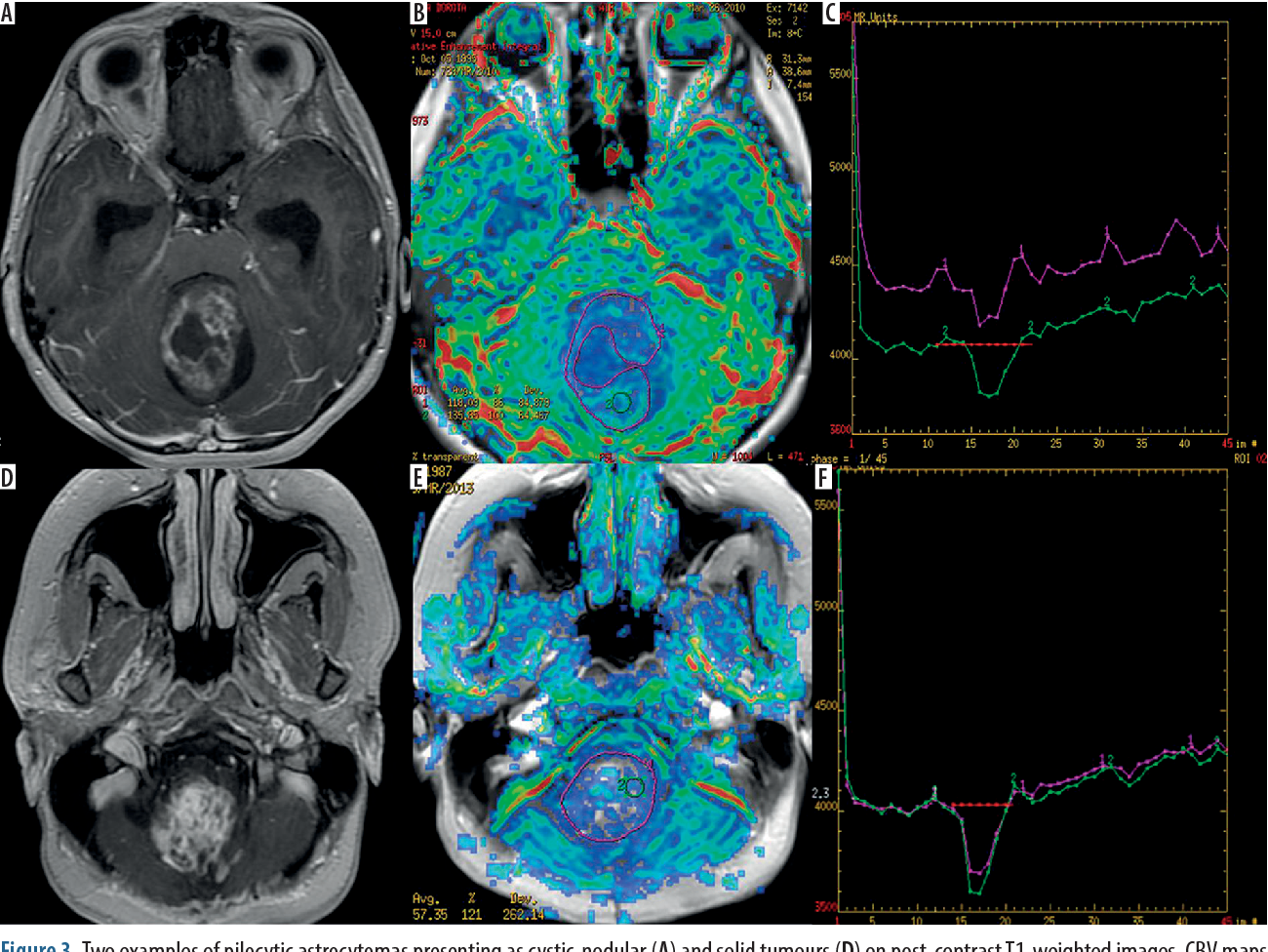 Figure 3 from The role of diffusion and perfusion magnetic resonance on