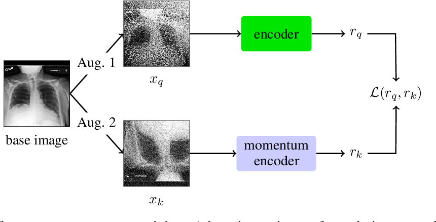 Figure 3 for COVID-19 Deterioration Prediction via Self-Supervised Representation Learning and Multi-Image Prediction