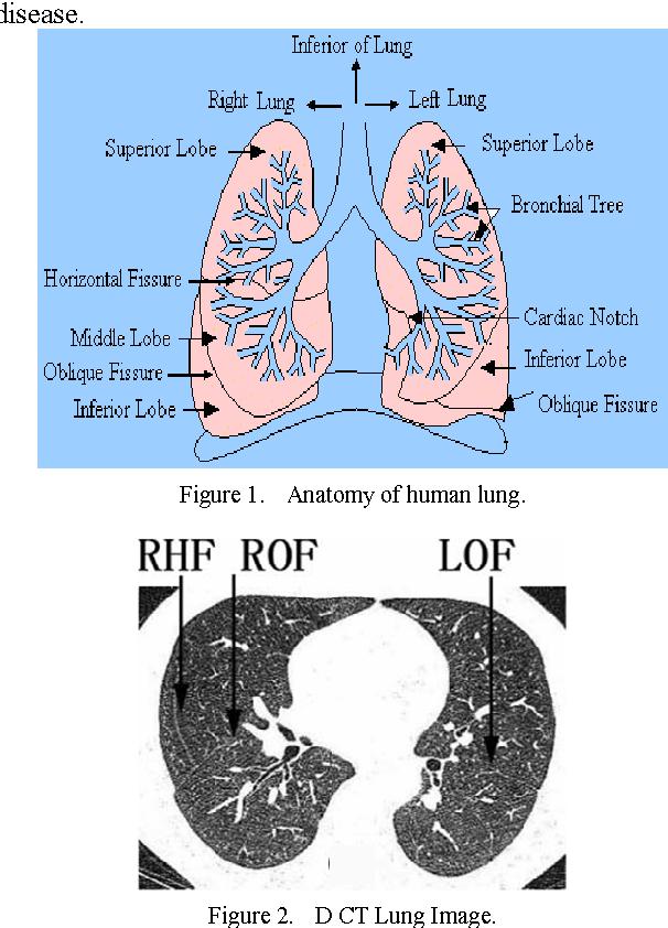 Großzügig Normale Lungenanatomie Zeitgenössisch - Anatomie von ...