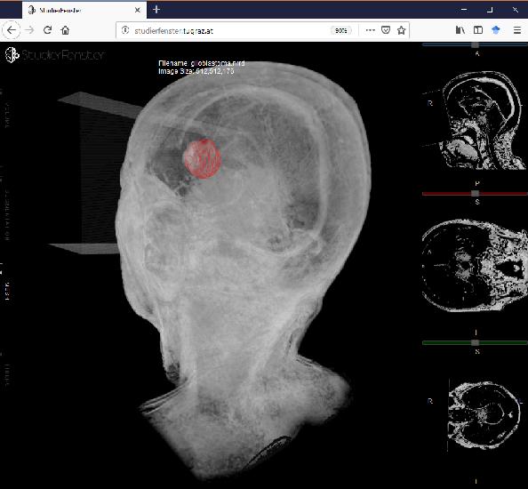 Figure 3 for Client/Server Based Online Environment for Manual Segmentation of Medical Images