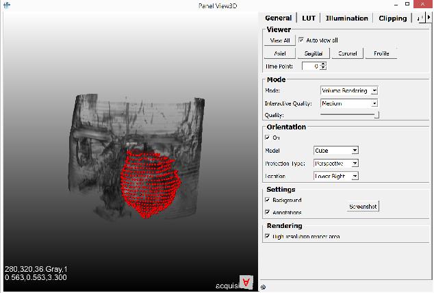 Figure 4 for Client/Server Based Online Environment for Manual Segmentation of Medical Images