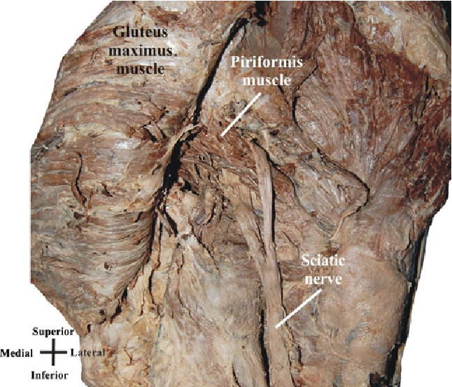 Piriformis syndrome: implications of anatomical variations