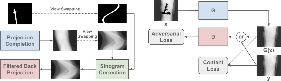 Figure 1 for Generative Mask Pyramid Network for CT/CBCT Metal Artifact Reduction with Joint Projection-Sinogram Correction