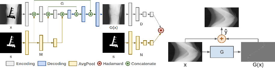Figure 2 for Generative Mask Pyramid Network for CT/CBCT Metal Artifact Reduction with Joint Projection-Sinogram Correction