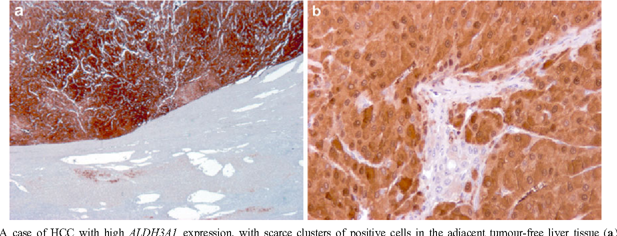 Fig. 2 A case of HCC with high ALDH3A1 expression, with scarce clusters of positive cells in the adjacent tumour-free liver tissue (a). Both cytoplasmic and nuclear ALDH3A1 immunoreactivity was observed (b)