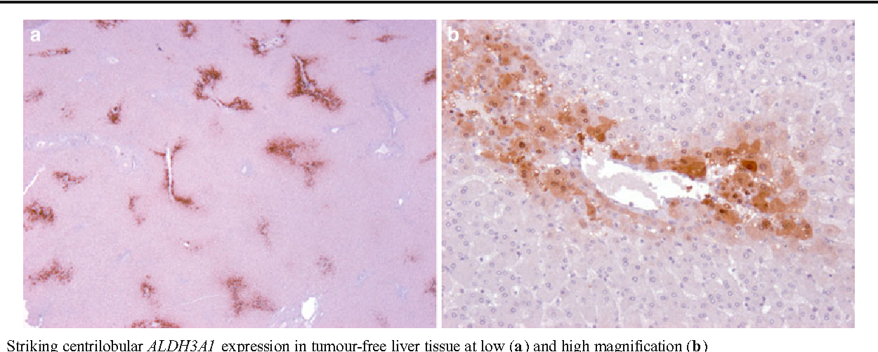 Fig. 5 Striking centrilobular ALDH3A1 expression in tumour-free liver tissue at low (a) and high magnification (b)