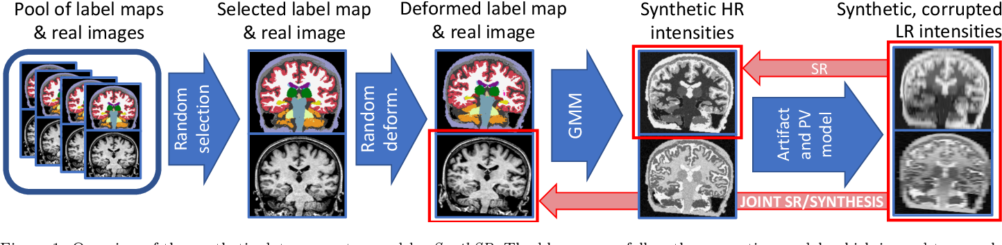 Figure 1 for Joint super-resolution and synthesis of 1 mm isotropic MP-RAGE volumes from clinical MRI exams with scans of different orientation, resolution and contrast