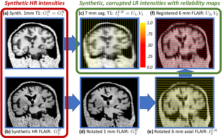 Figure 3 for Joint super-resolution and synthesis of 1 mm isotropic MP-RAGE volumes from clinical MRI exams with scans of different orientation, resolution and contrast