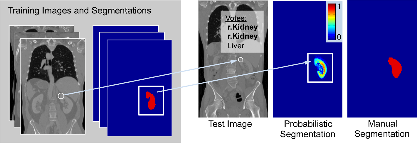 Figure 1 for Keypoint Transfer for Fast Whole-Body Segmentation