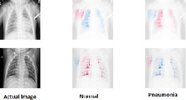 Figure 1 for ViDi: Descriptive Visual Data Clustering as Radiologist Assistant in COVID-19 Streamline Diagnostic