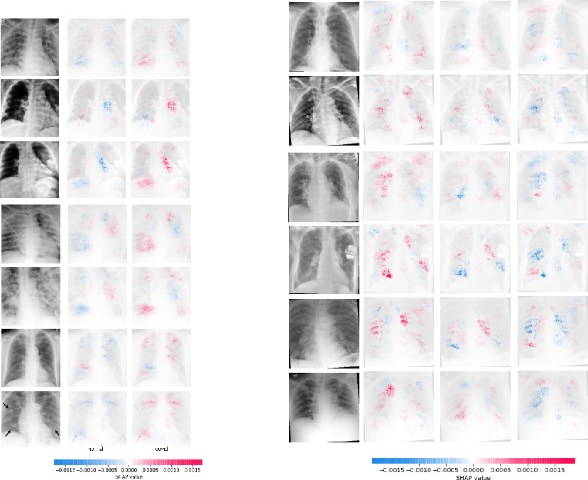 Figure 4 for ViDi: Descriptive Visual Data Clustering as Radiologist Assistant in COVID-19 Streamline Diagnostic
