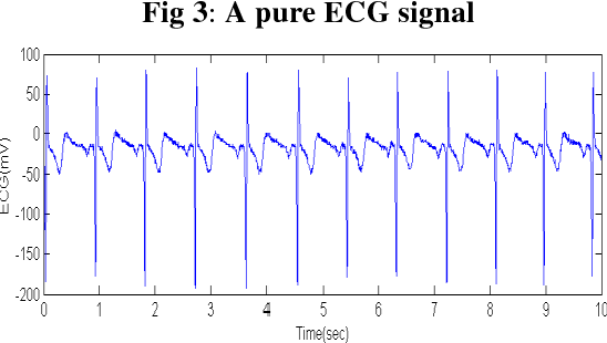 Figure 3 from ESTIMATION OF HEART RATE USING SIGNAL FUSION