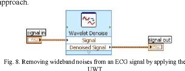 Figure 8 from Study and Analysis of ECG Signal Using MATLAB