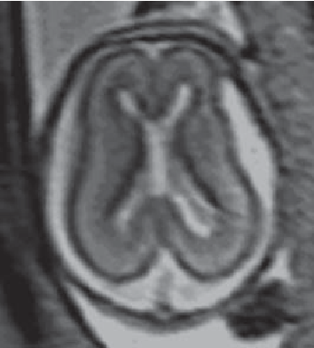 Fig. 1. T 2 -weighted MR image in the transverse plane of a fetal brain at 20 weeks gestation showing layers of the developing cerebrum.