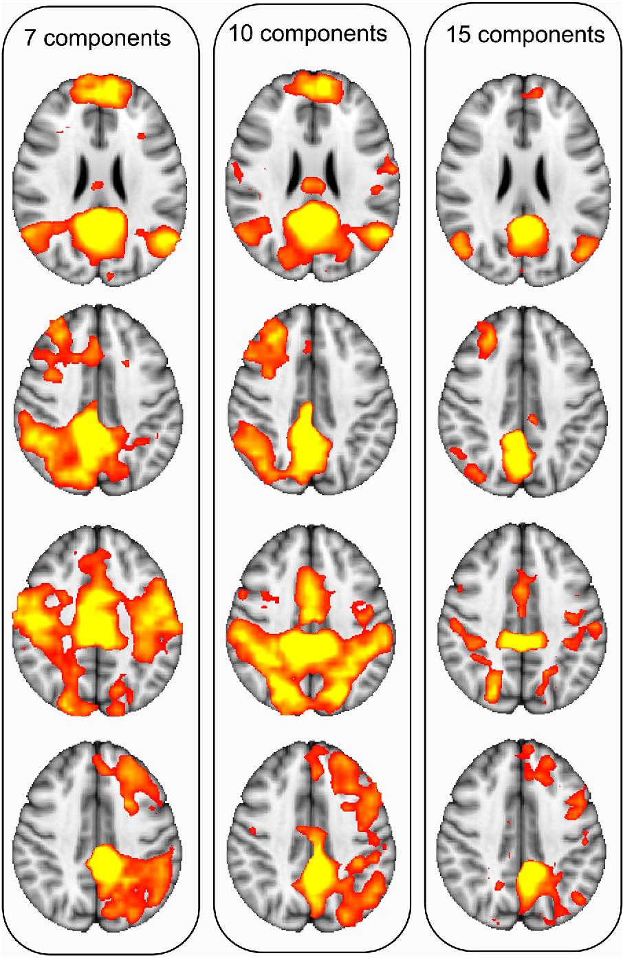 Gray Matter Of Posterior Cingulate Gyrus Semantic Scholar