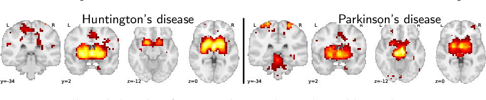 Figure 4 for Text to brain: predicting the spatial distribution of neuroimaging observations from text reports