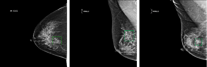 Figure 1 for Learning from Suspected Target: Bootstrapping Performance for Breast Cancer Detection in Mammography