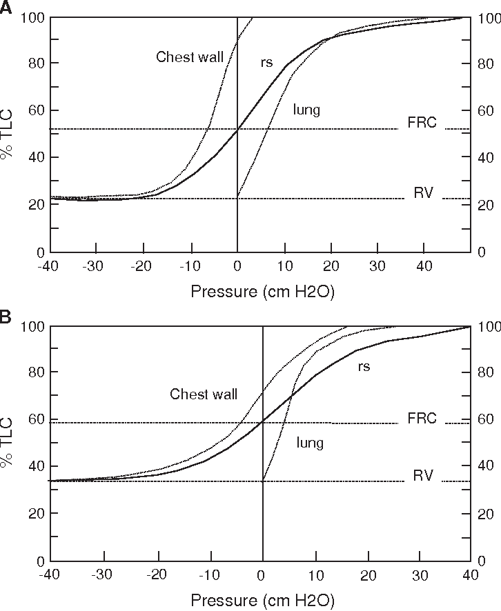 Aging of the respiratory system impact on pulmonary function tests figure 1 ccuart Images