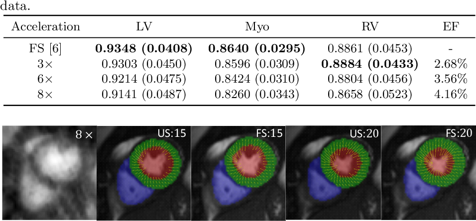 Figure 3 for Joint Motion Estimation and Segmentation from Undersampled Cardiac MR Image