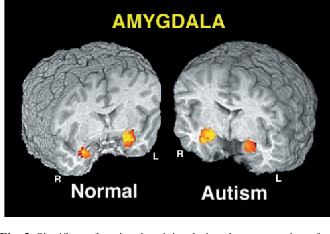 Figure 3 from The brain response to personally familiar ...