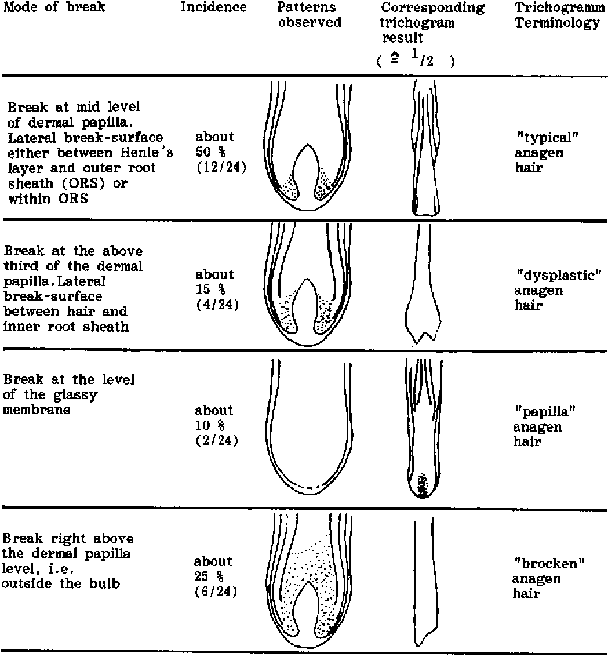Effects Of Plucking On The Anatomy Of The Anagen Hair Bulb