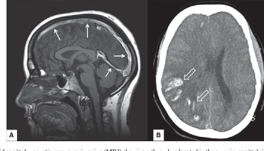 How To Treat Cerebral Venous And Sinus Thrombosis Semantic Scholar