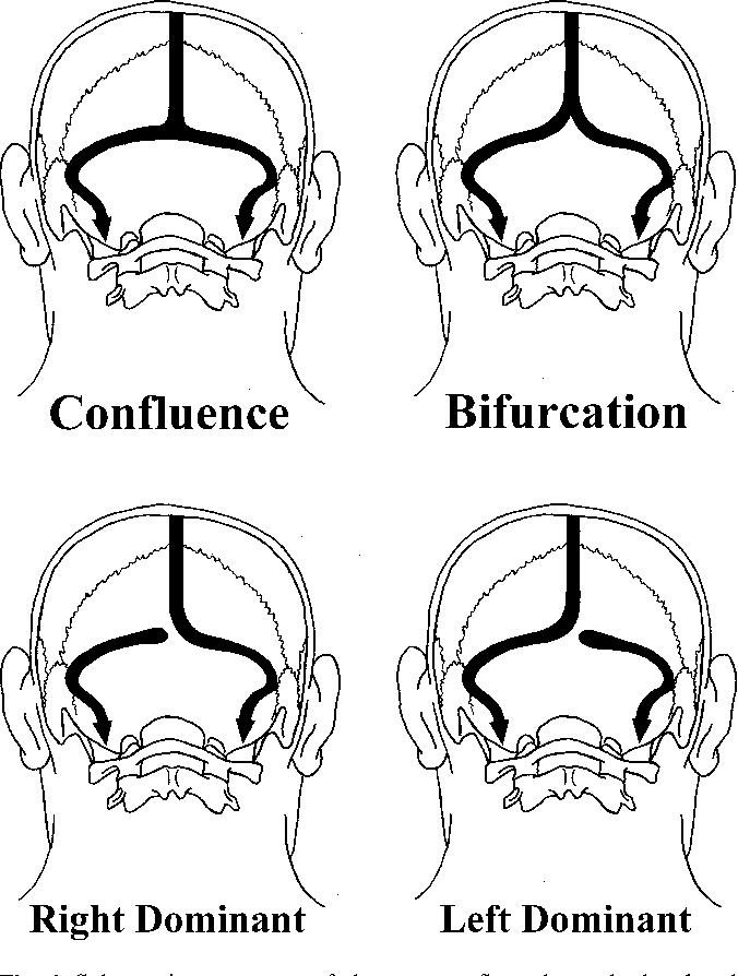 Anatomical variations of occipital bone impressions for dural venous ...