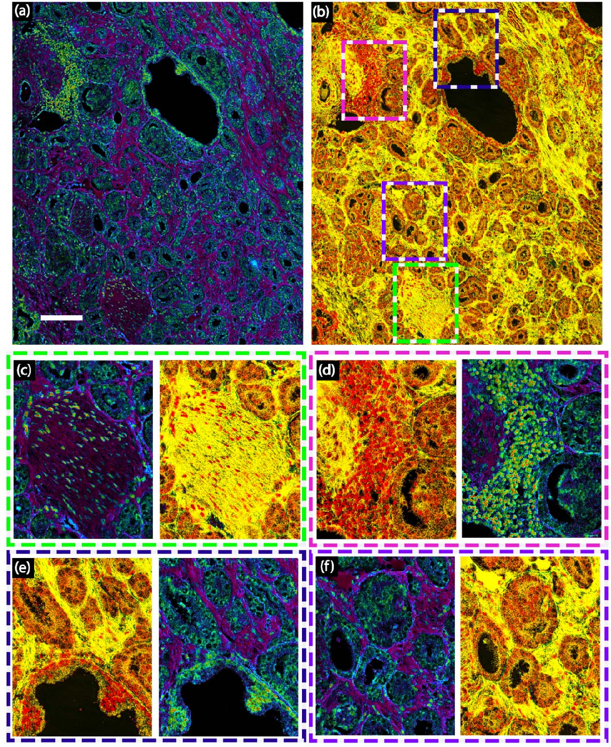 Figure 3 for Prostate cancer histopathology with label-free multispectral deep UV microscopy quantifies phenotypes of tumor grade and aggressiveness