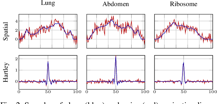 Figure 2 for An Adversarial Learning Based Approach for Unknown View Tomographic Reconstruction