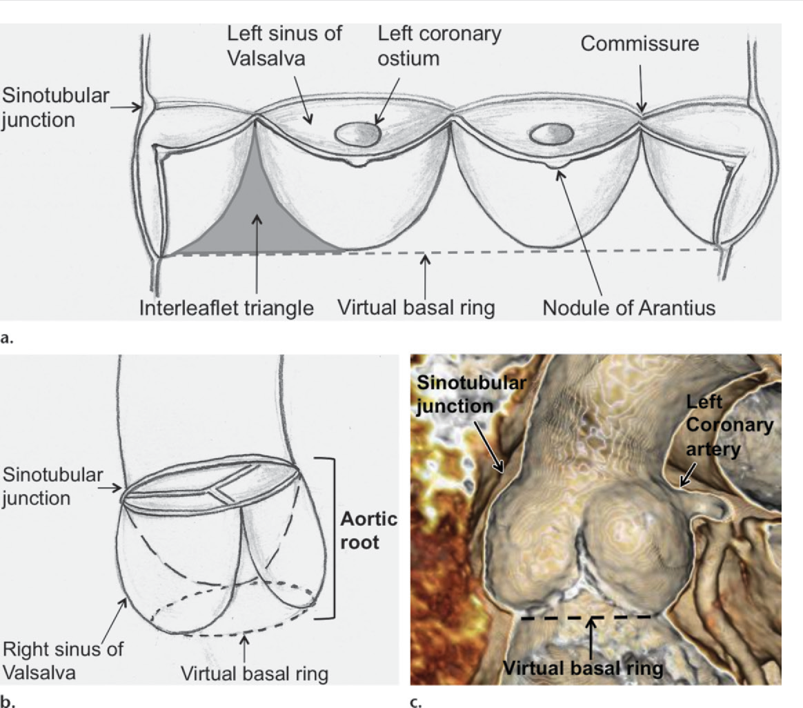 Figure 1 from Pre- and Postoperative Imaging of the Aortic Root ...