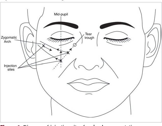 Figure 1 From Cheek Augmentation With Dermicol P35 27g