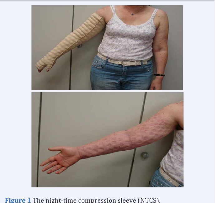 1825cd6263 PDF] Clinical use of a Night-Time MOBIDERM Garment as a Treatment ...