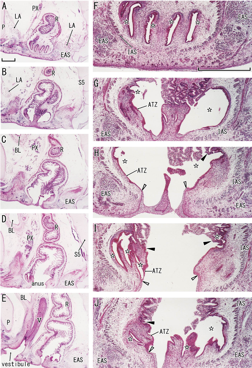 Fetal growth of the anal sinus and sphincters, especially in ...