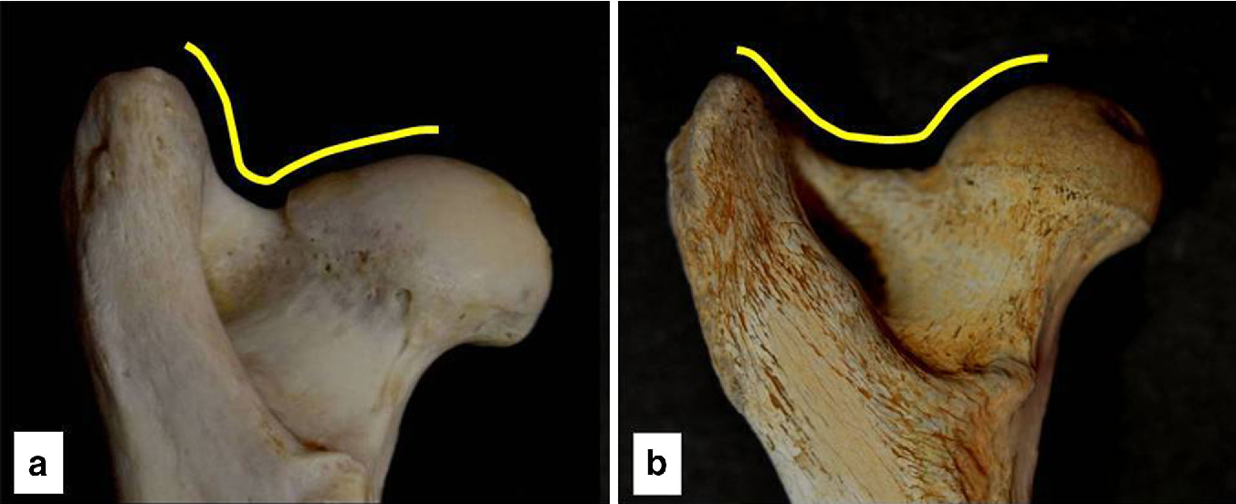 Figure 5 from Differences in femoral morphology between sheep (Ovis ...