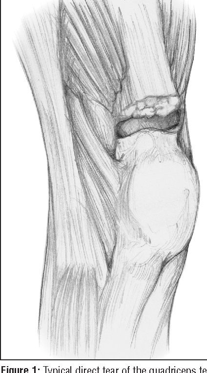 Synthetic mesh augmentation of acute and subacute quadriceps tendon figure 1 ccuart Images