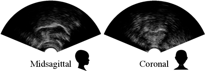 Figure 3 for Automatic audiovisual synchronisation for ultrasound tongue imaging