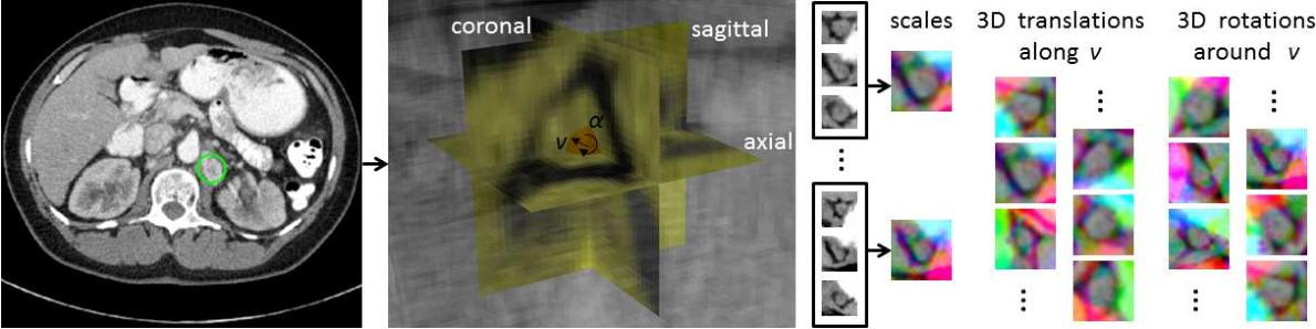 Figure 1 for A New 2.5D Representation for Lymph Node Detection using Random Sets of Deep Convolutional Neural Network Observations