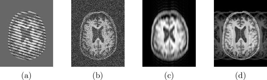 Figure 2 for A Heteroscedastic Uncertainty Model for Decoupling Sources of MRI Image Quality