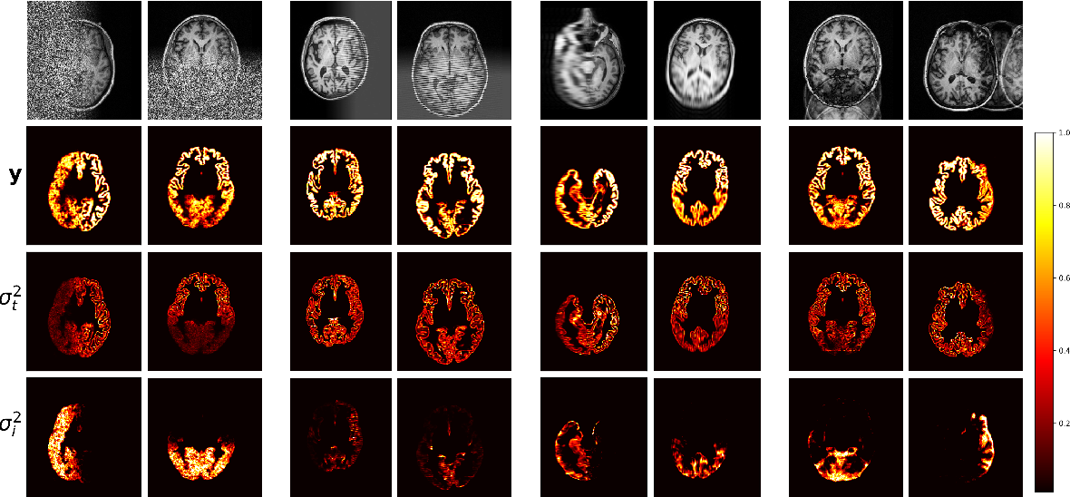 Figure 3 for A Heteroscedastic Uncertainty Model for Decoupling Sources of MRI Image Quality
