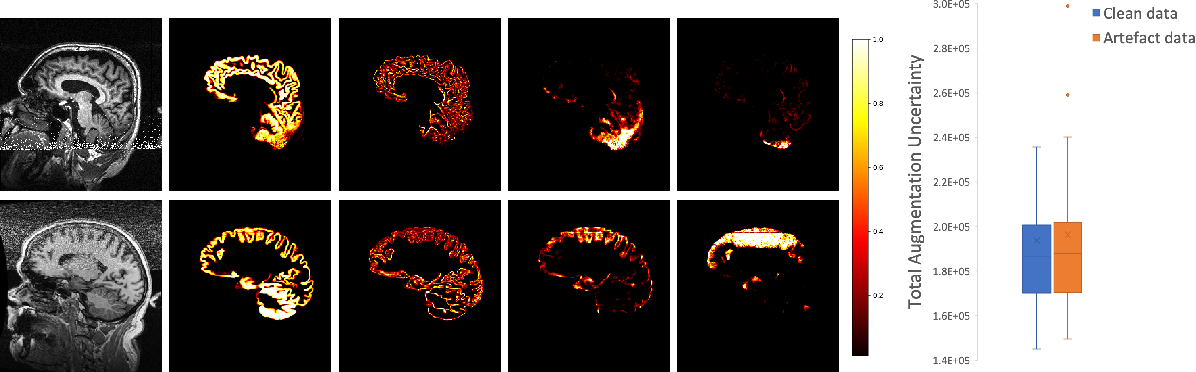 Figure 4 for A Heteroscedastic Uncertainty Model for Decoupling Sources of MRI Image Quality