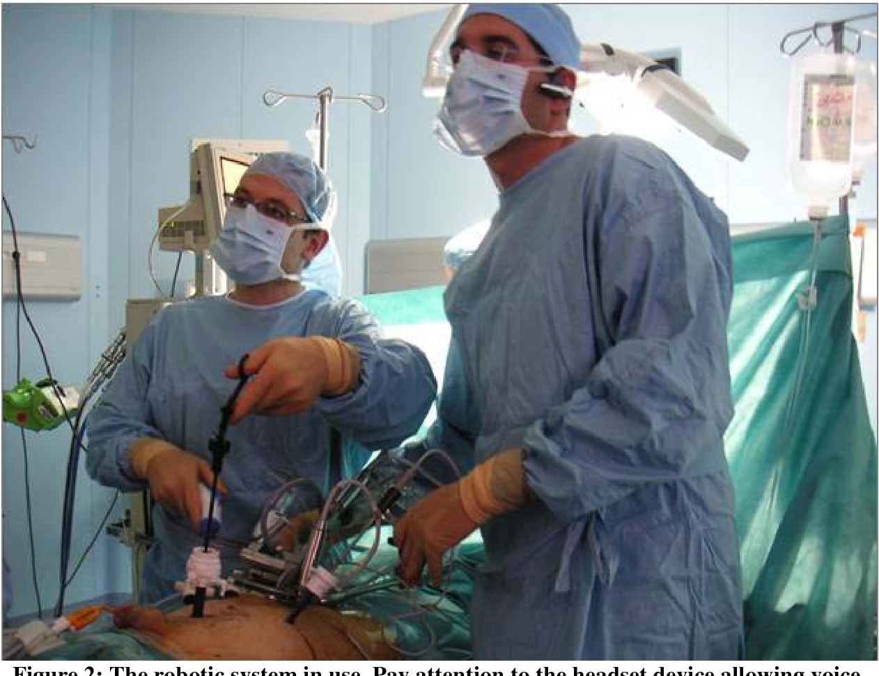 Figure 3 for First Clinical Experience in Urologic Surgery with a Novel Robotic Lightweight Laparoscope Holder